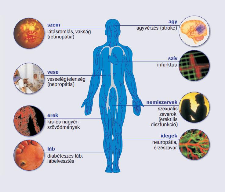 a magas vérnyomás mint a betegségek kockázati tényezője