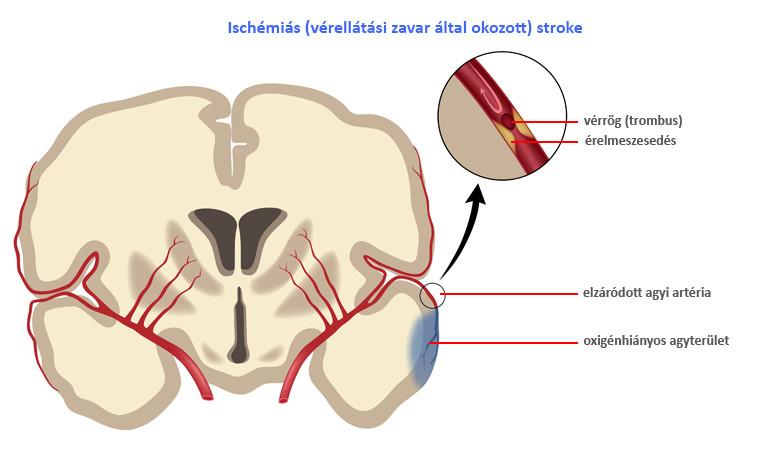 magas vérnyomás és iszkémiás stroke)
