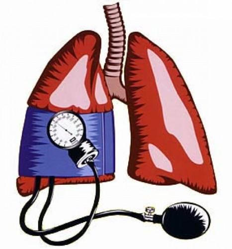 mérsékelt pulmonalis hipertónia)