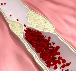 a magas vérnyomás elleni layise széna megerősítései hajdina zabkása és magas vérnyomás
