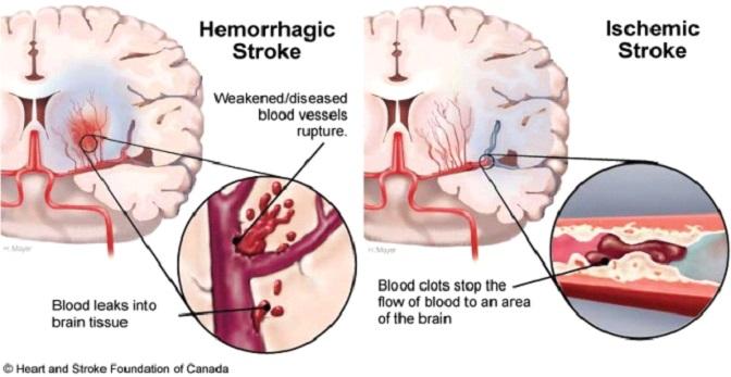 Kezeletlen magas vérnyomás: ilyen bajt okozhat - HáziPatika
