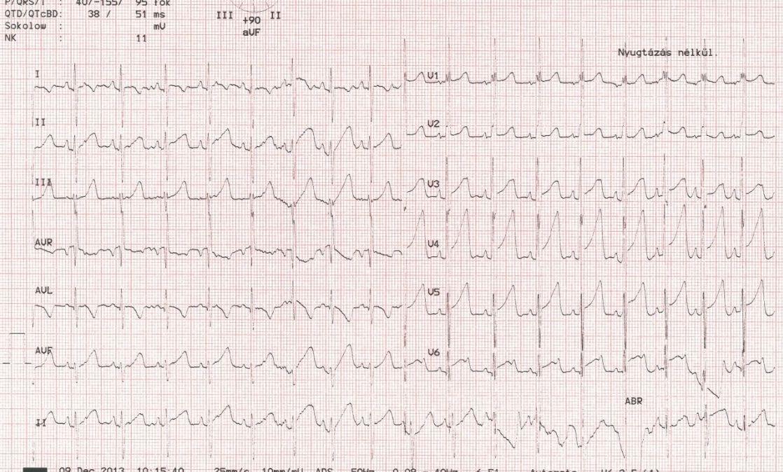 tachycardia vagy magas vérnyomás