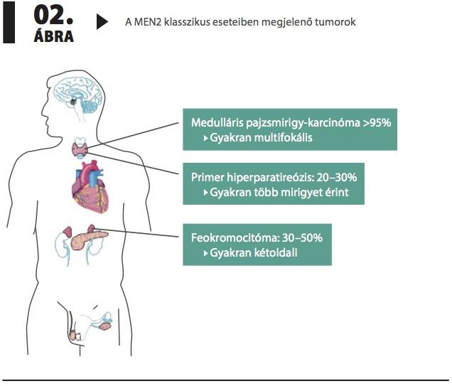 * Feokromocitóma (Betegségek) - Meghatározás - Online Lexikon