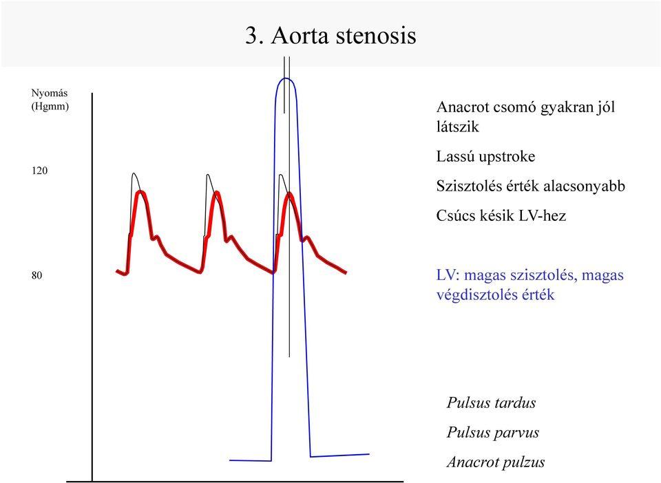A vérnyomás és értékei - Orvosi szűrővizsgálatok - Üzemi nyomás hipertónia