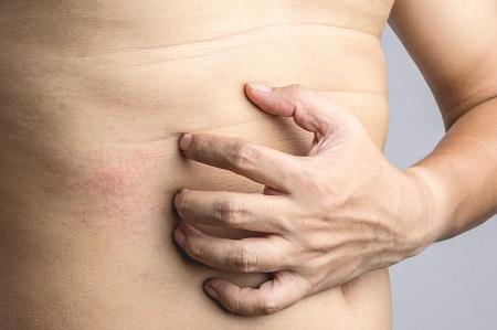 orrvérzés és magas vérnyomás