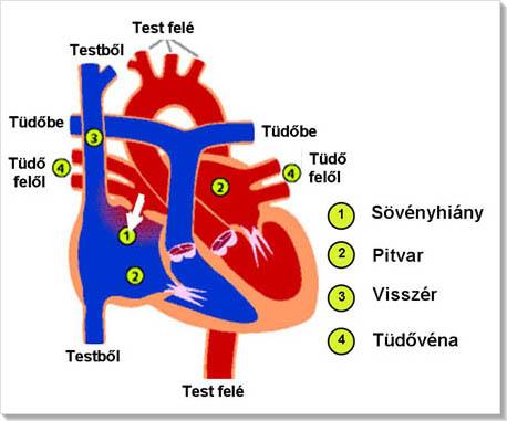 ASD 2 és magas vérnyomás