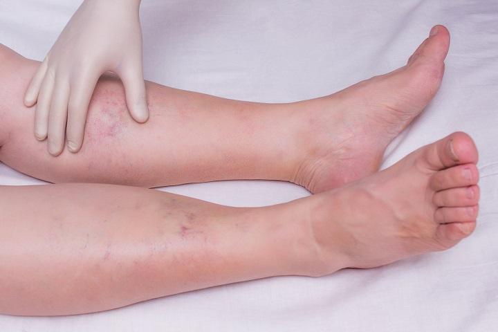 magas vérnyomás duzzadó lábak