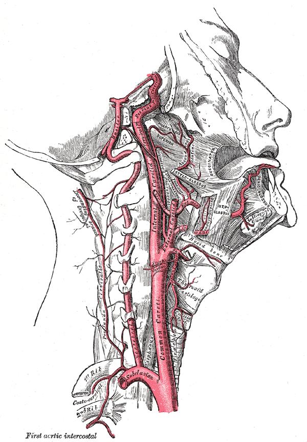 carotis arteria hypertonia