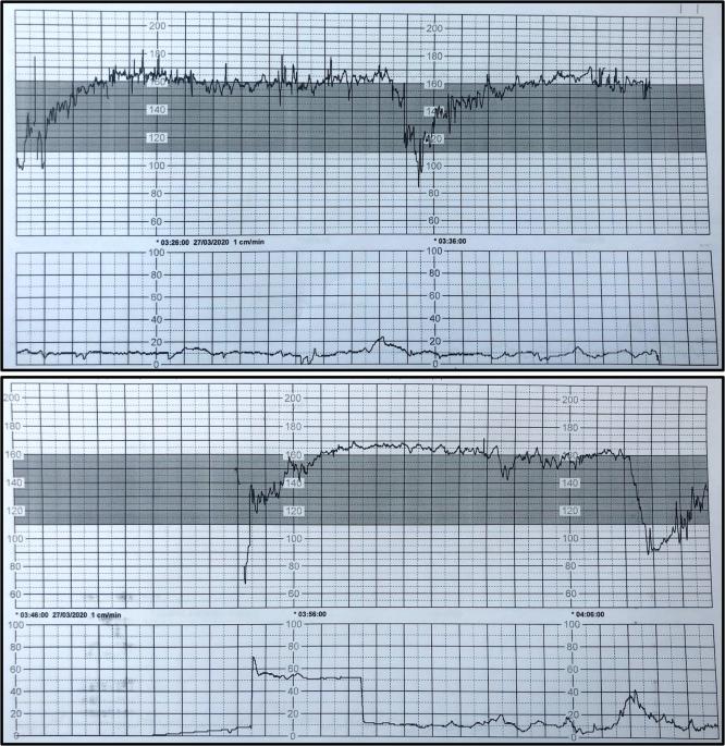 mi a tachycardia hipertónia