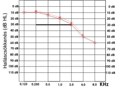magas vérnyomás halláskárosodás esetén tyanshi és magas vérnyomás