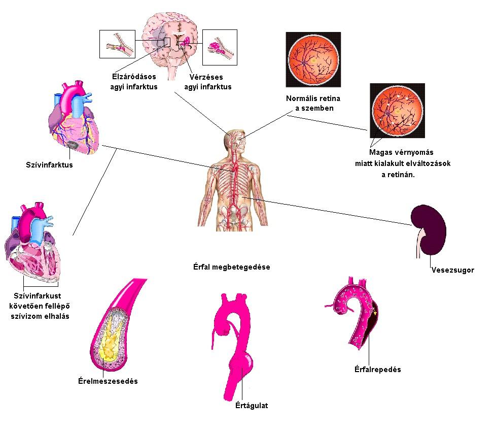 a magas vérnyomás következményeket okoz)