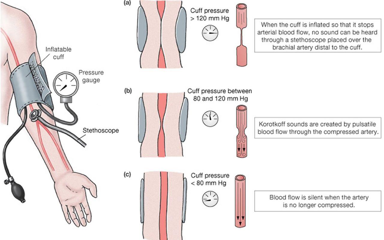 elektrokardiogram és magas vérnyomás