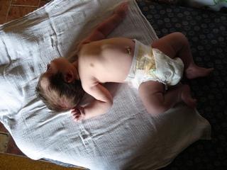 hipertónia csecsemőknél tünetek hipertónia alternatívája