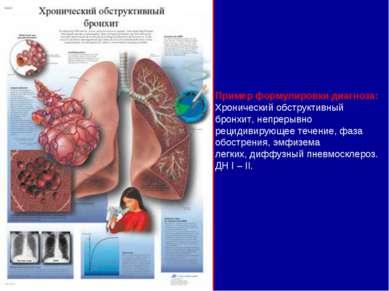 pulmonalis hipertónia 2 fok