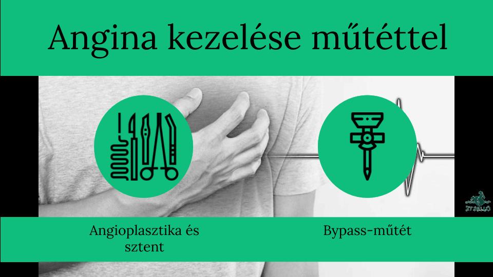 anginás magas vérnyomás elleni gyógyszer