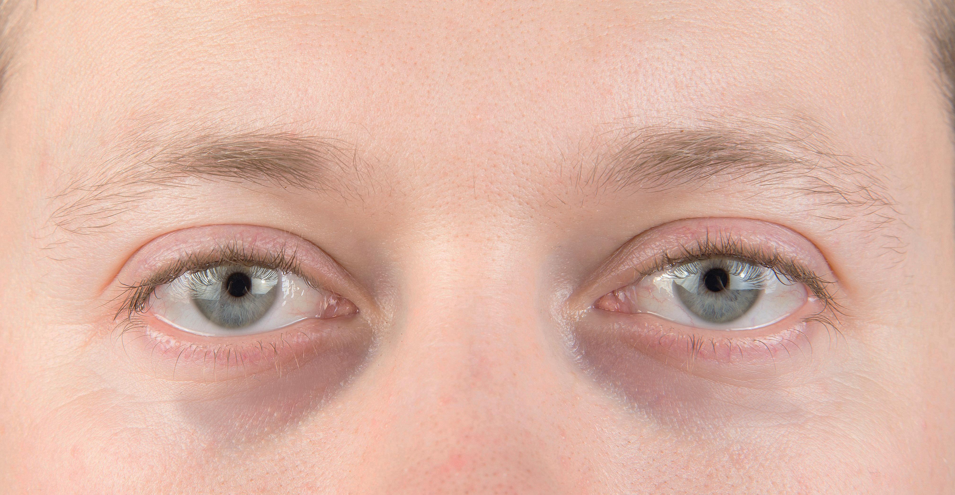 magas vérnyomás és a szem alatti táskák)