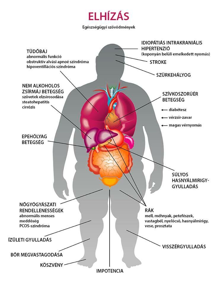 a magas vérnyomás következményeket okoz