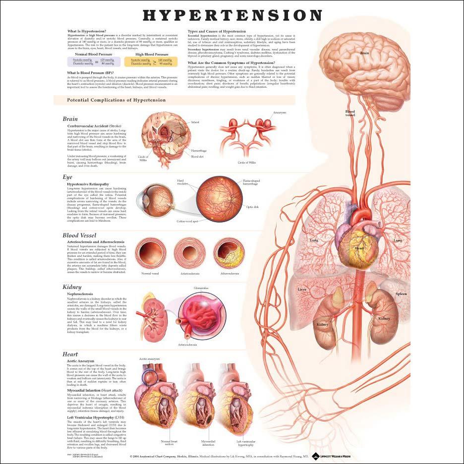 hipertónia túlsúlyos szívkárosodással