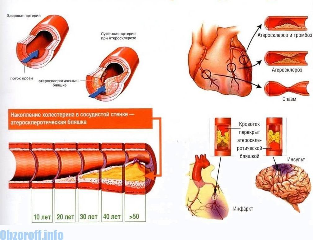 magas vérnyomás 2 típusú fogyatékosság