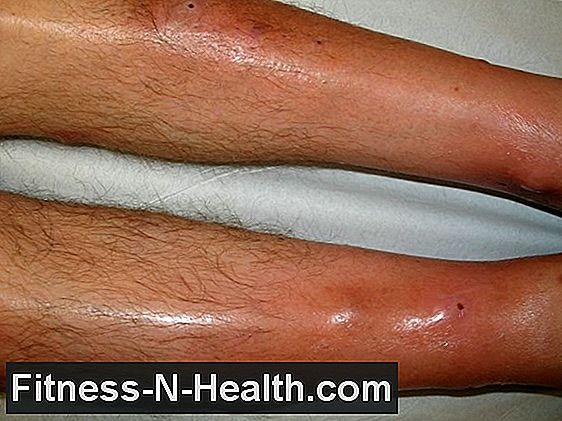 magas vérnyomás és vasculitis