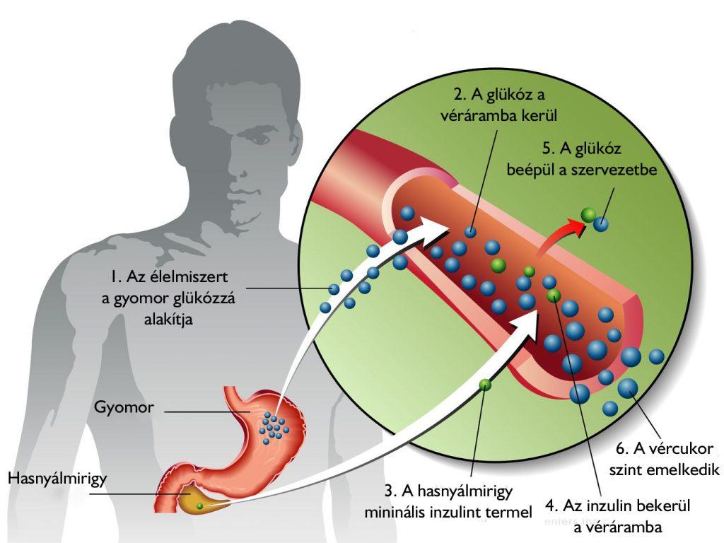 táplálék magas vérnyomású 2-es típusú cukorbetegség esetén