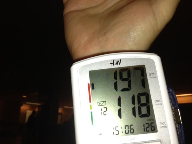 magas vérnyomás 2 fokos vélemények magas vérnyomás és veseartér szűkület