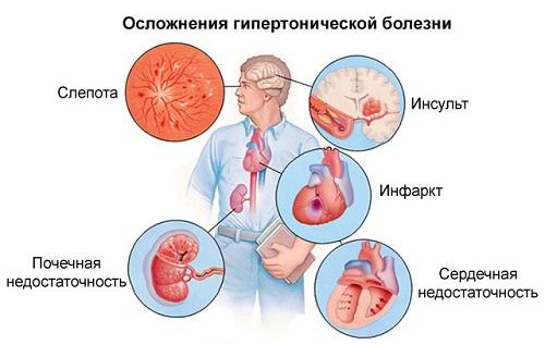 a magas vérnyomás betegségei