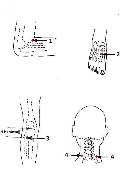 pontok a füleken magas vérnyomás esetén