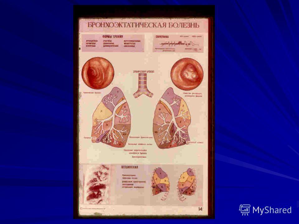 másodfokú magas vérnyomás kockázata 2 életmód magas vérnyomás esetén